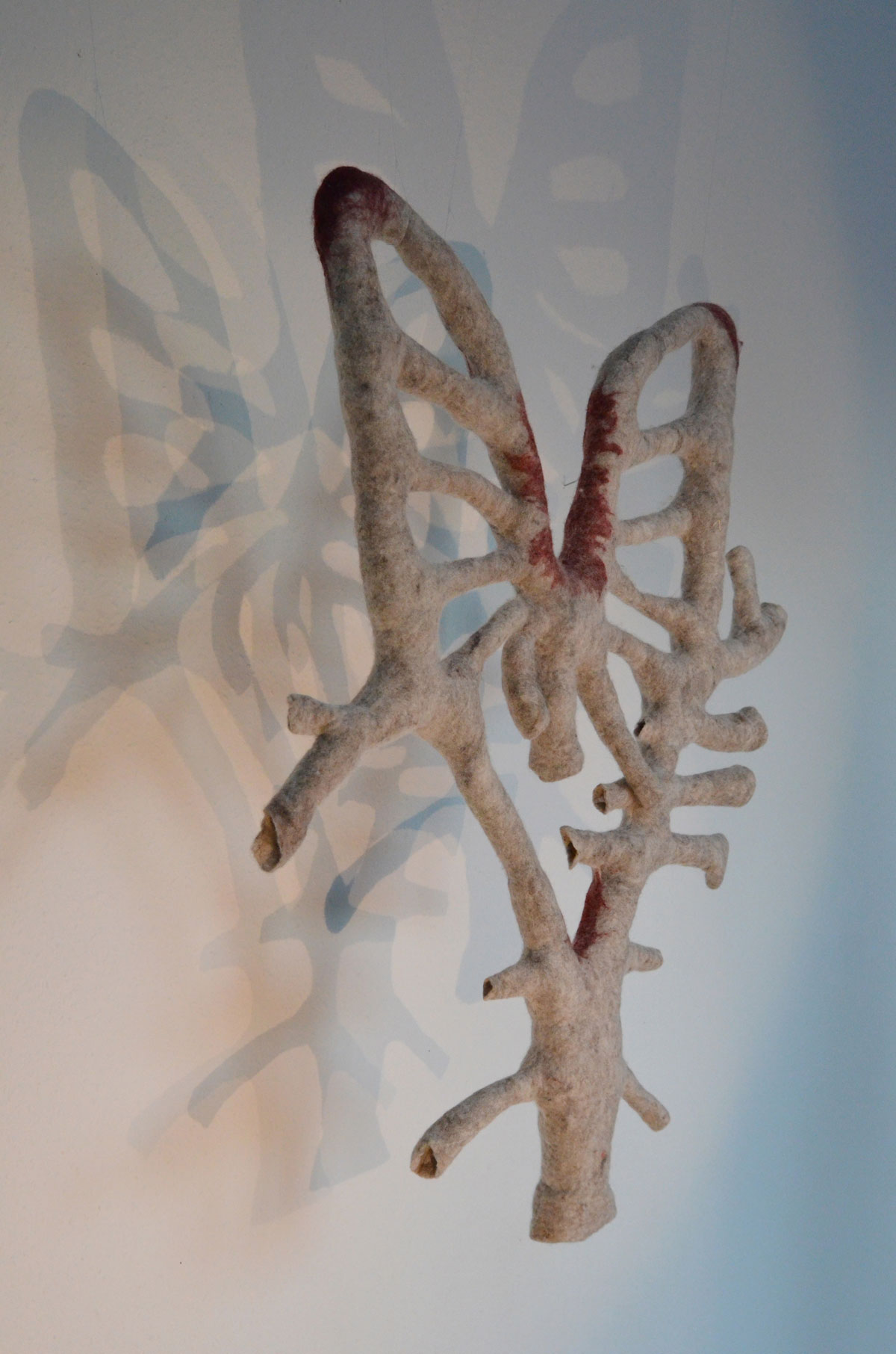 Arterienbogen